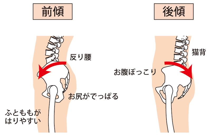 骨盤矯正 産後 腰痛 恥骨痛