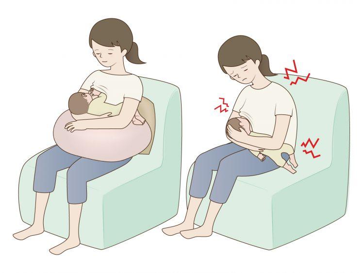 腰痛 恥骨痛 産後骨盤矯正 出産